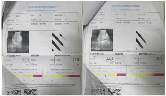 肝不硬了!三甲专家金晓燕临床应用专利软肝术 成功逆转患者肝硬化